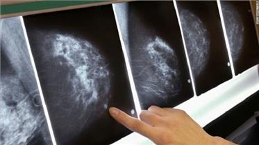 چند دلیل مهم برای انجام تست غربالگری سرطان سینه